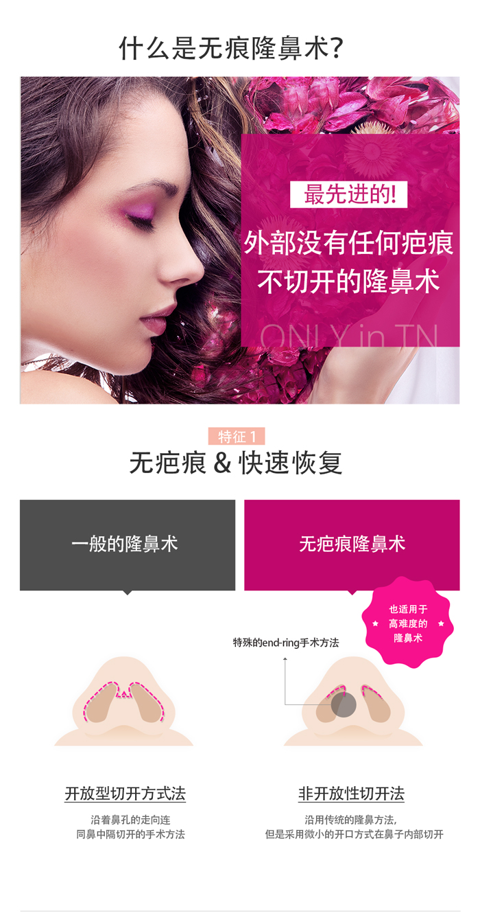 韩国TN整形外科 X AllaboutMEI 隆鼻术 特价活动 / no scar nose surgery in Korea with quick recovery