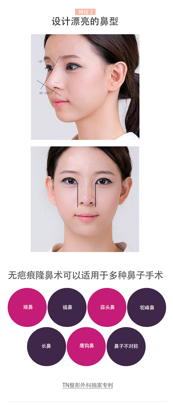 韩国TN整形外科 X AllaboutMEI 隆鼻术 特价活动 / beautiful and natural shape to create by no scar rhinoplasty