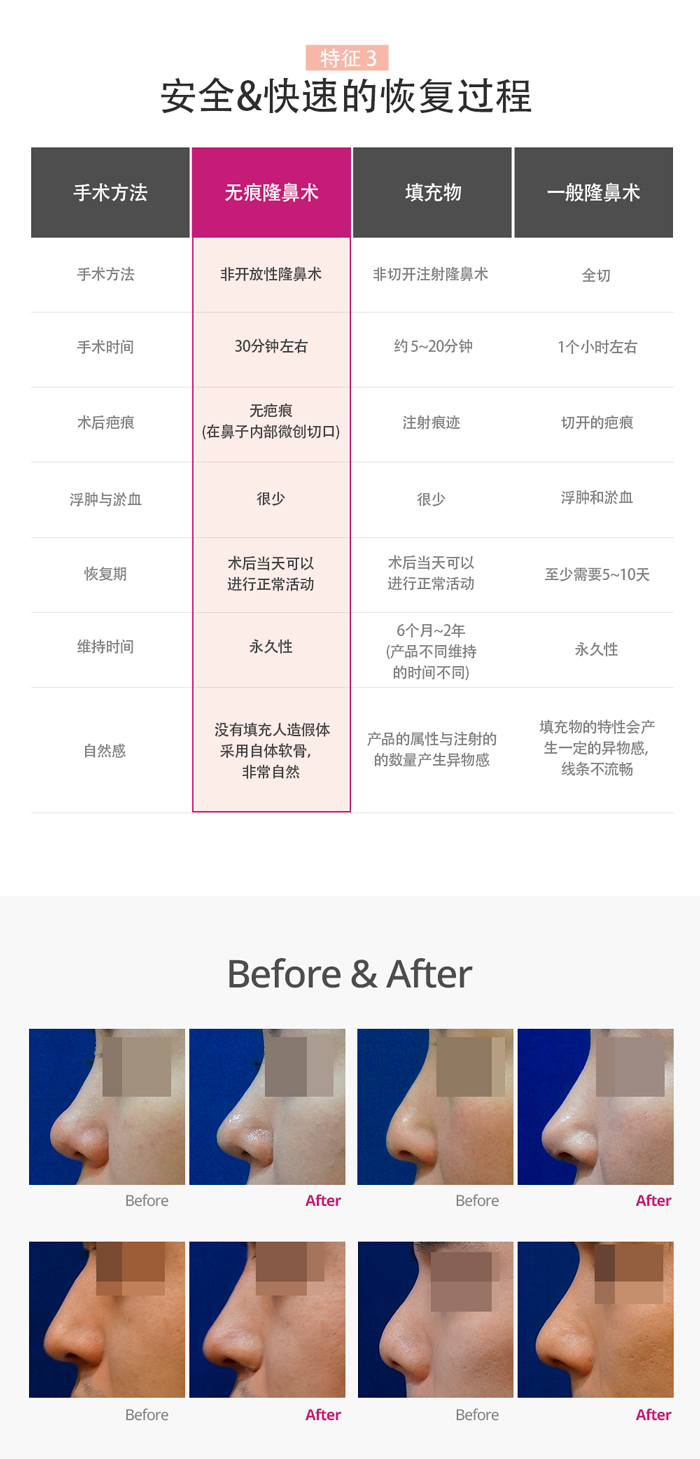 韩国TN整形外科 X AllaboutMEI 隆鼻术 特价活动 / before and after photos of TN's no scar nose surgery / the lowest price