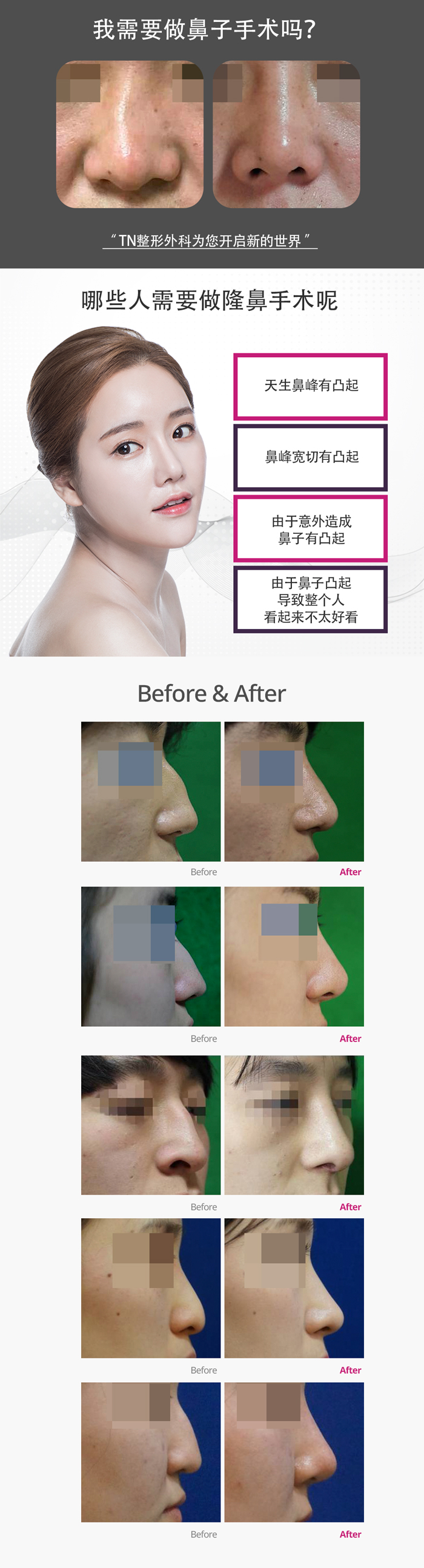 韩国TN整形外科 X AllaboutMEI 隆鼻术 特价活动 / hump nose surgery with the lowest price in All about MEI