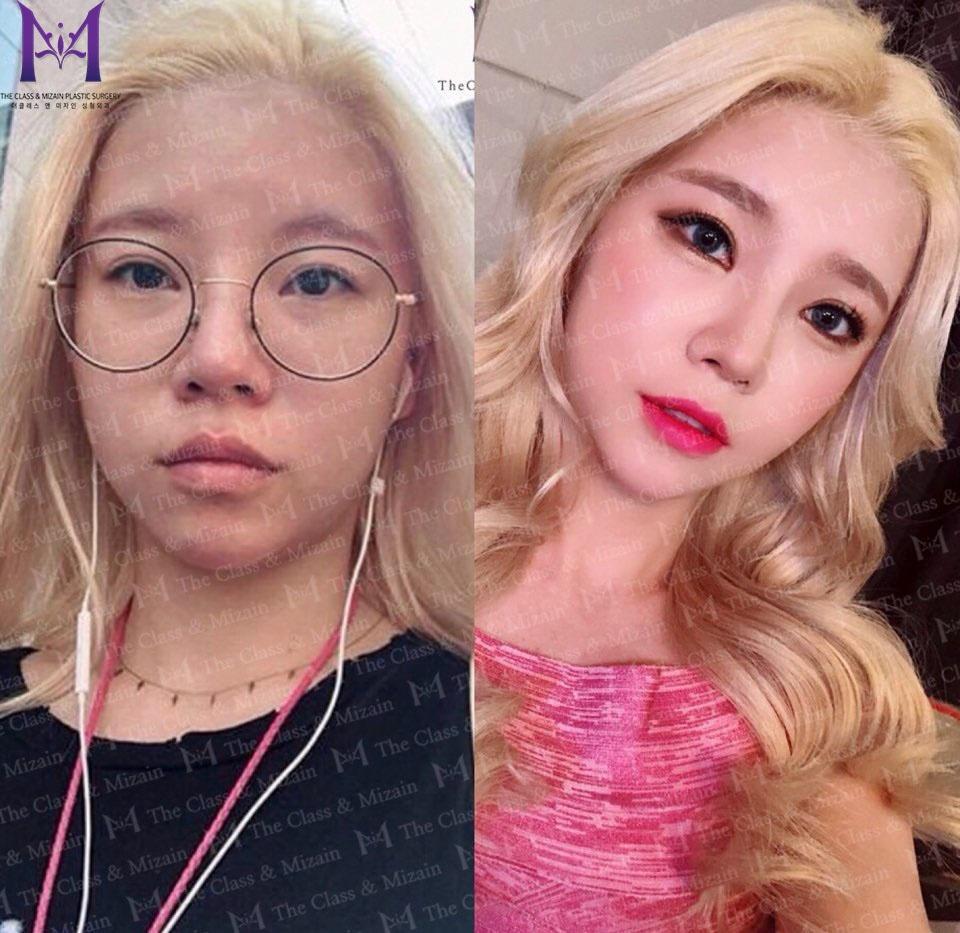 Korea BEST Face Lift Surgery clinic! Reduce Facial Wrinkles