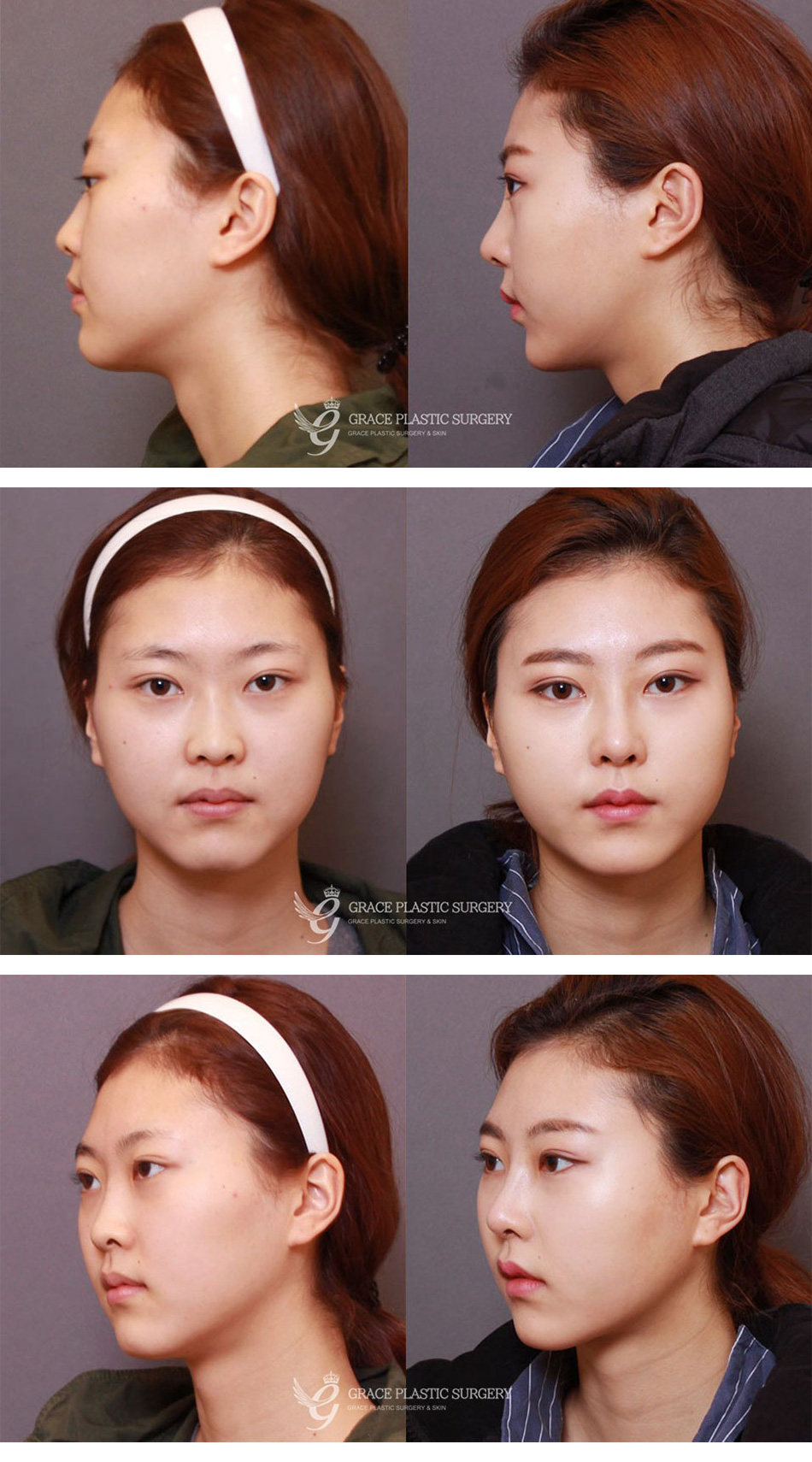 Korea BEST Fat Grafting clinic! Natural facial fat transfer's price