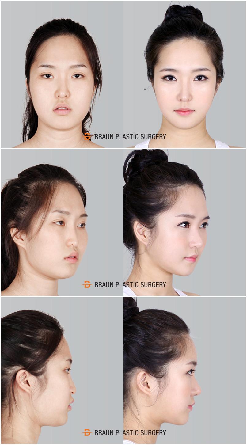 Korea BEST V-Line Facial Contouring clinic! 3D CT Facial