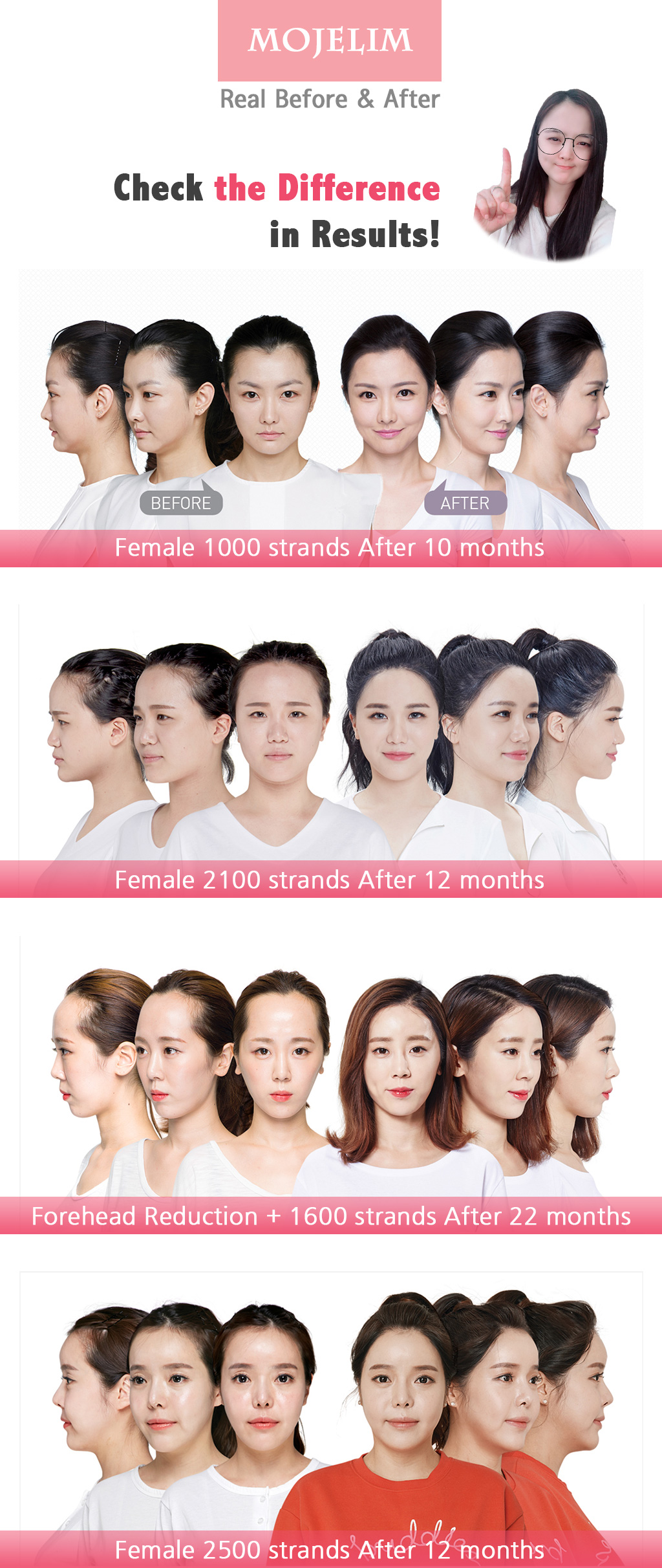 MOJELIM hair surgery x all about mei special offer / before and after photos of MOJELIM for females hairline / the lowest price in all about mei