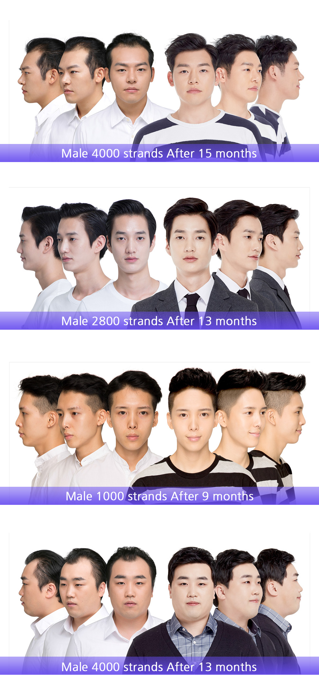 MOJELIM hair surgery x all about mei special offer / before and after photos of MOJELIM for male hair transplantation / the lowest price in all about mei
