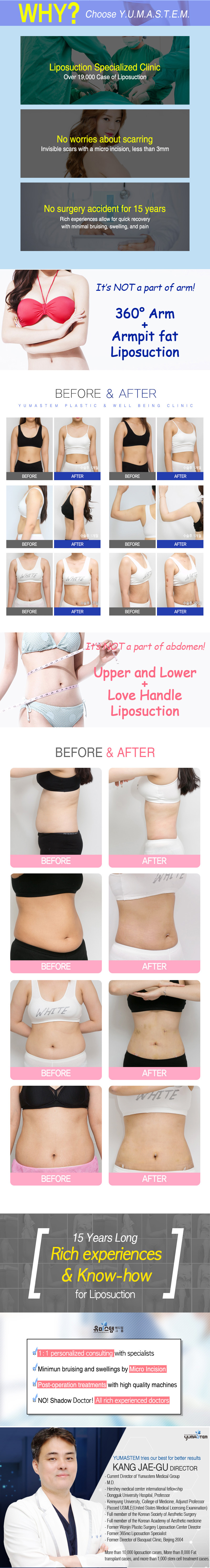 Before and after photos of YUMASTEM's patients. Dr.Kang's liposuction and fat grafting