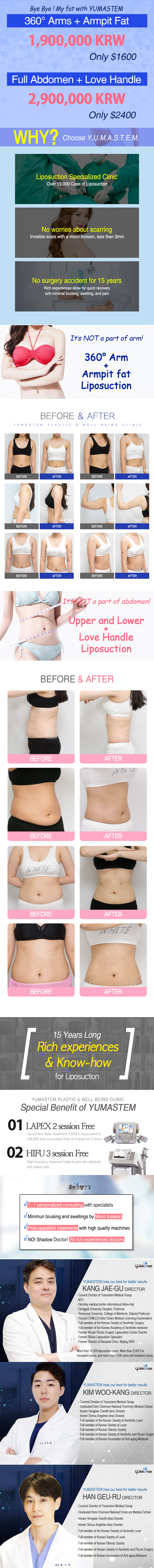 Why you should choose YUMASTEM liposuction? specialist of liposuction over 19000 cases and safe surgery with know-how. before and after photos of arm & stomach liposuction